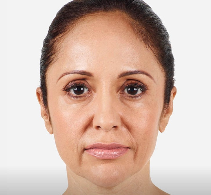 Dermal Fillers | Aesthetic Clinic